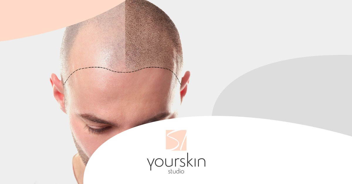 Yourskin Studio presenta il nuovo trattamento di tricopigmentazione